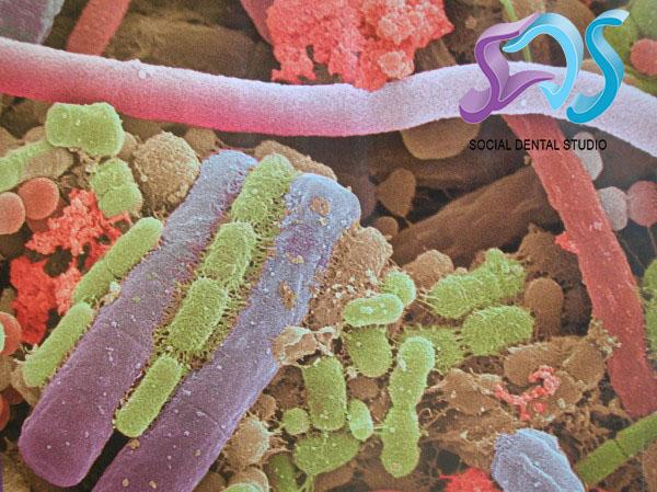 Placa bacteriana, placa dental o biofilm