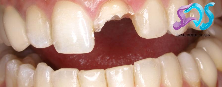 ¿Qué harías si… sufrieras un traumatismo dental?
