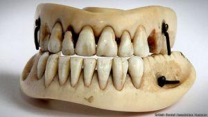 150618160120_waterloo_dientes_624x351_britishdentalassociationmuseum