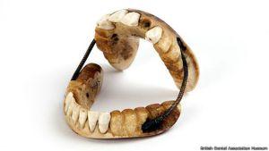 150618162022_waterloo_dientes_624x351_britishdentalassociationmuseum
