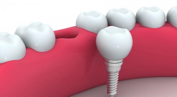 implantes-vitaldent-600x330