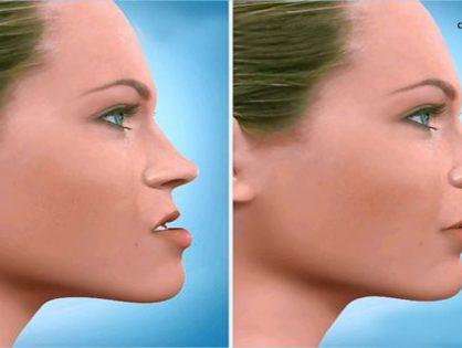 ¿En qué casos necesitarías una cirugía maxilofacial?