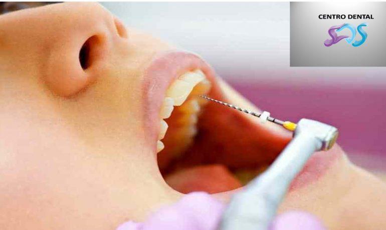 Cuánto tiempo dura un diente con endodoncia