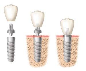 implantes-dentales-mejor-solution