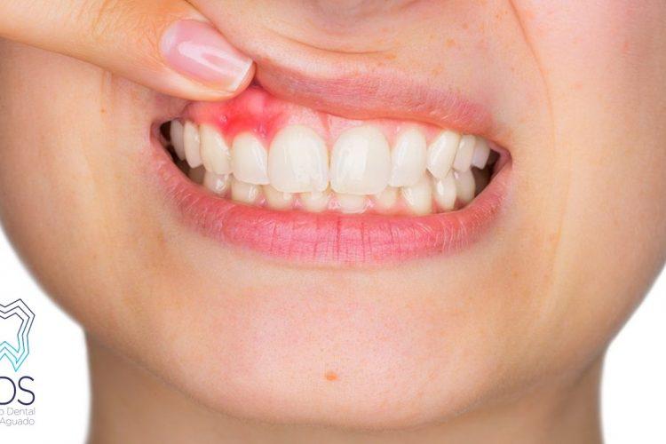 manchas en las encías-clínica dental chamberí